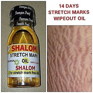 Shalom Stretch Marks Oil (3 Bottles) - For All Skin Types